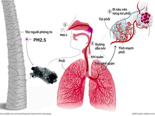 Hạt bụi PM 2.5 gây nhồi máu cơ tim
